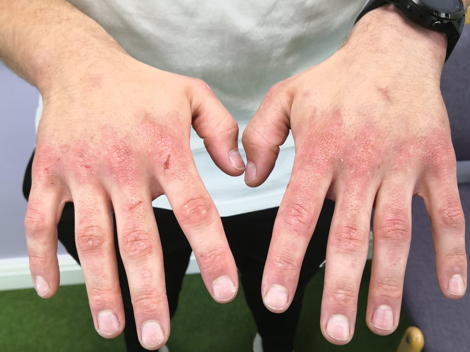 Image of skin on the hands after PBM Therapy