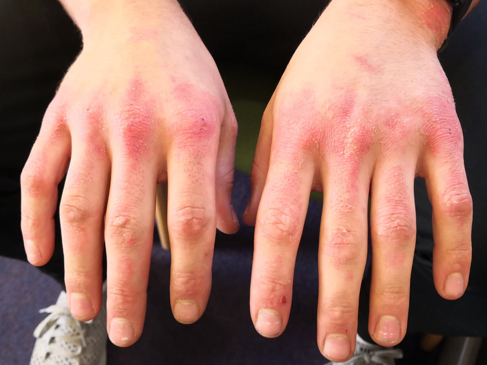 Image of skin on the hands before PBM Therapy