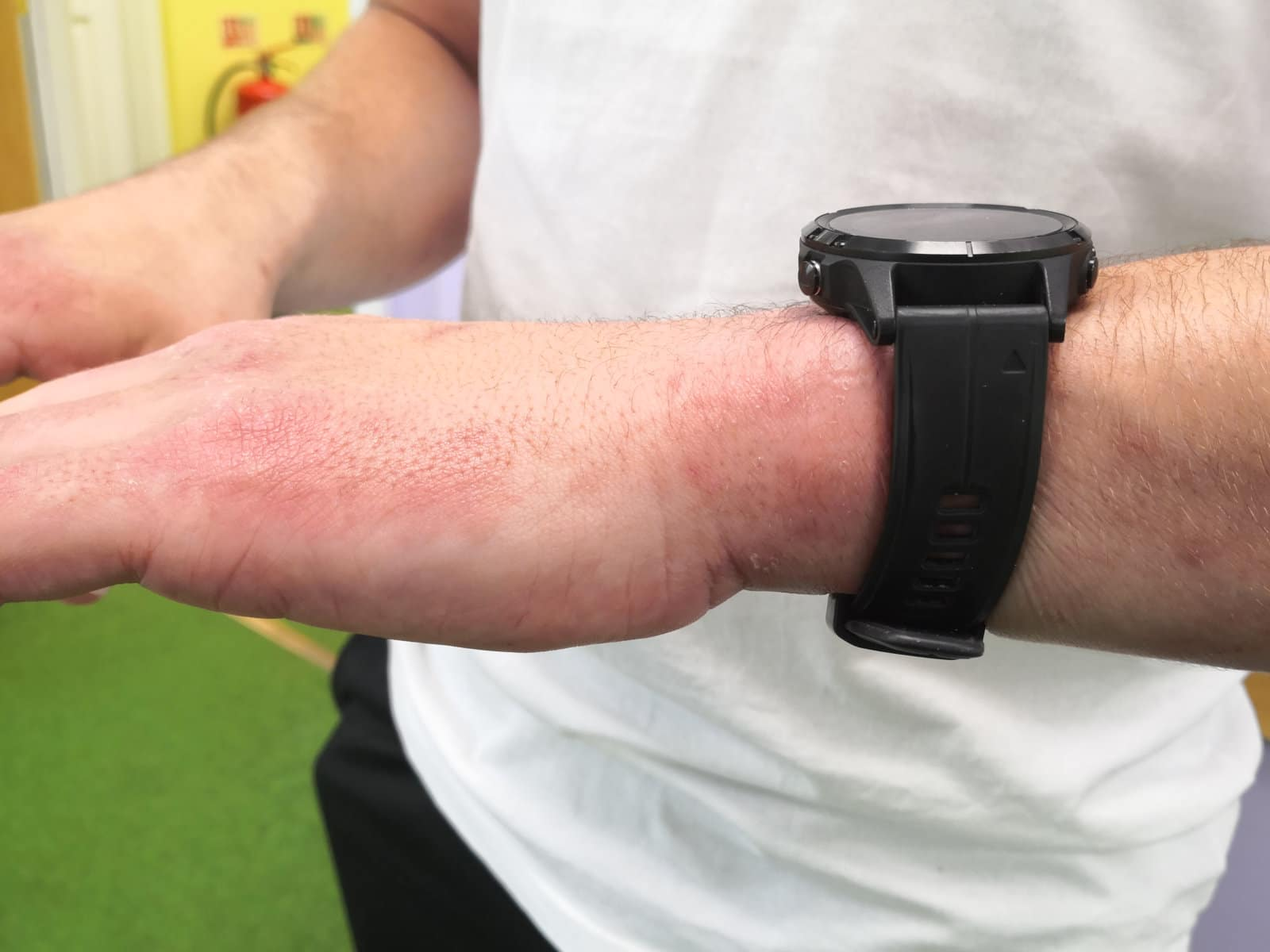 Image of skin on the wrist after PBM Therapy