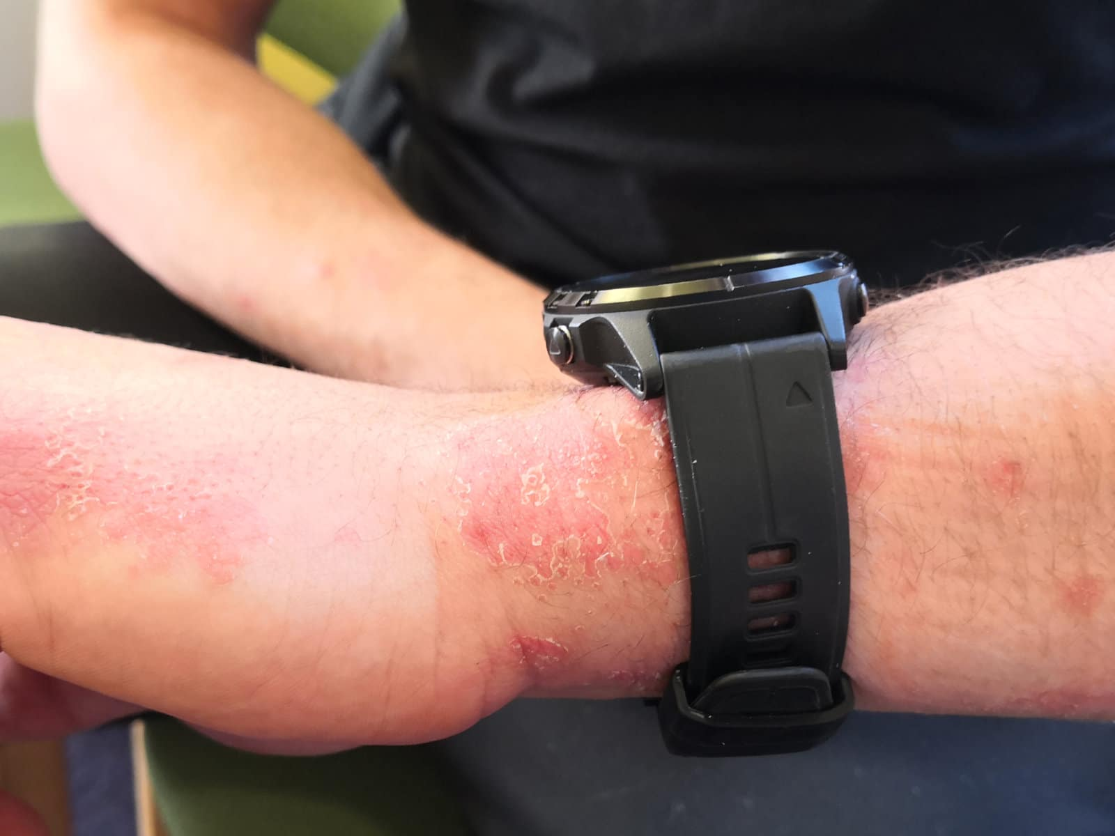 Image of skin on the wrist before PBM Therapy