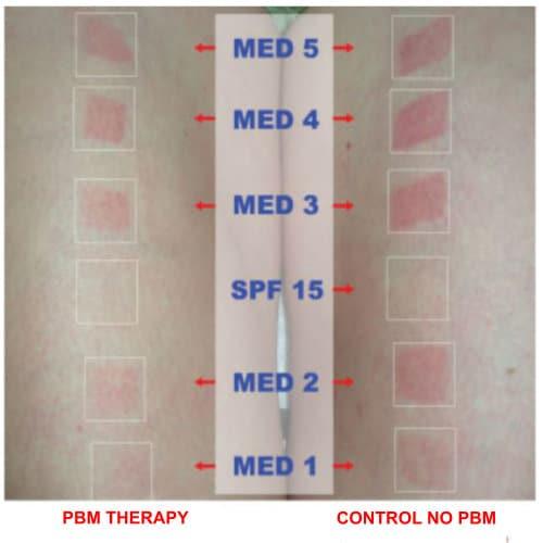 PBM Therapy Prevents UV Skin Damage